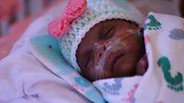 world tiniest baby.jpg